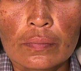 Lhyperpigmentation sur la peau des pieds est sombre les taches rouge foncé